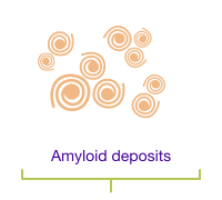 Amyloid deposits.
